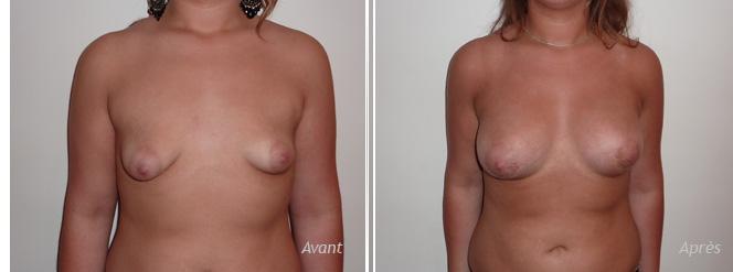 seins tubéreux augmentation mammaire implant anatomique