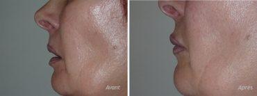 augmentation-levres-par-implant-permalip-femme-62-ans