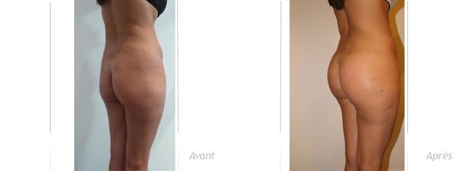 implants de fesses associé à une lipostructure, photos avant-après