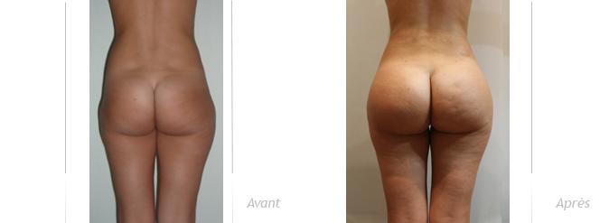 augmentation des fessiers par combinaison implants anatomiques et lipofilling, photos avant après