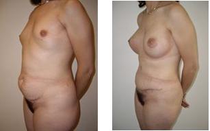 abdominoplastie-implants-mammaires-avant-apres