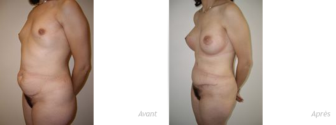 abdominoplastie et implants mammaires
