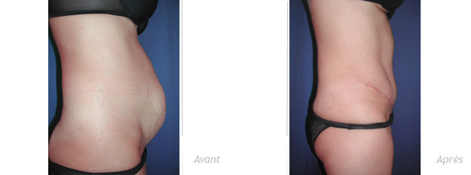 avant-apres-abdominoplastie