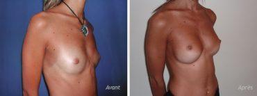 impant mammaire anatomique hypotrophie