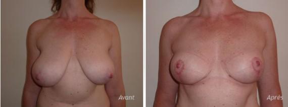 mastopexie-reduction-mammaire-asymetrie-avant-apres