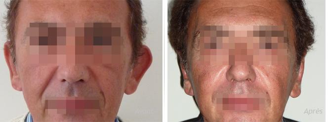 otoplastie pour asymétrie des oreilles décollées chez un adulte
