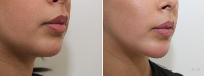 injection hyaluronique visage