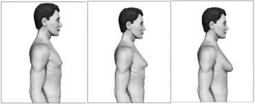 gynecomastie-stades-1-2-3