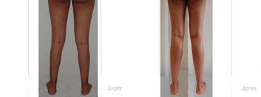 implant-mollet-avant-apres