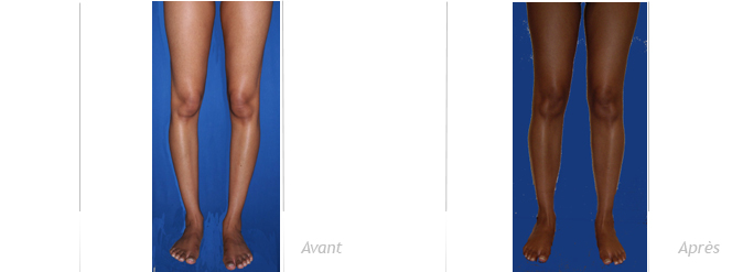 implant-mollet-peau-noire-avant-apres