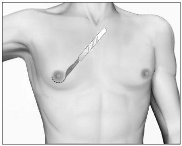 incision-simple-gynecomastie