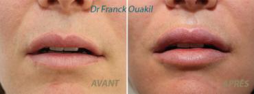 Avant après d'augmentation des lèvres par injection