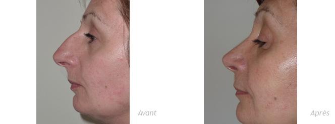 rhinoplastie-femme-avant-apres
