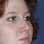 rhinoplastie complexe après 1