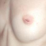 chirurgie de correction du mamelon ombiliqué