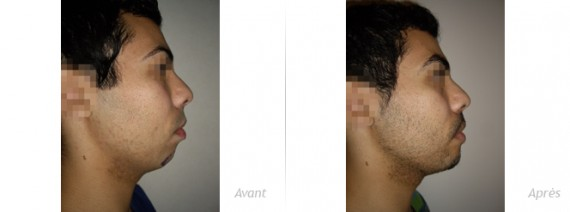 genioplastie augmentation implant menton jeune homme