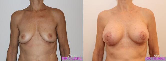 lifting implant sein