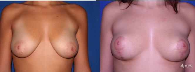 lifting-mammaire-par-plastie-verticale