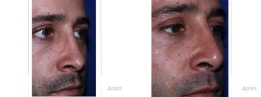 rhinoplastie-secondaire-implant-Medpor