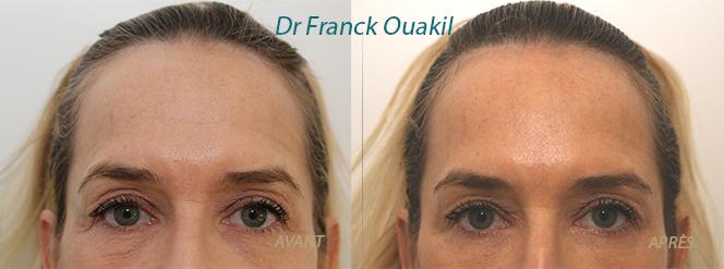 Lifting des sourcils et botox du front
