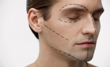 Illustration chirurgie esthétique visage génioplastie lifting otoplastie